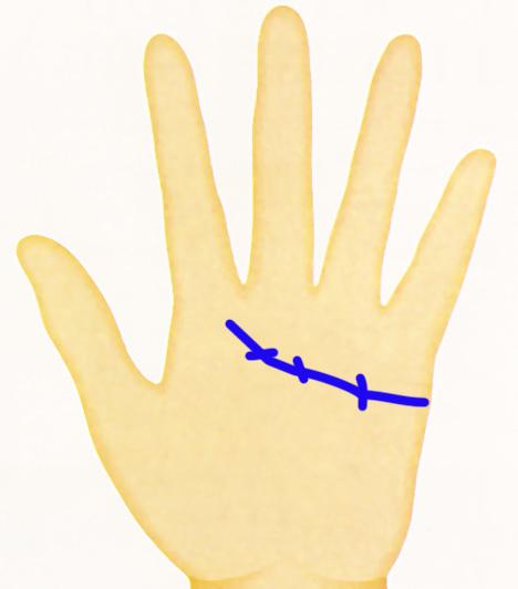 Kéz - keresztvonalat