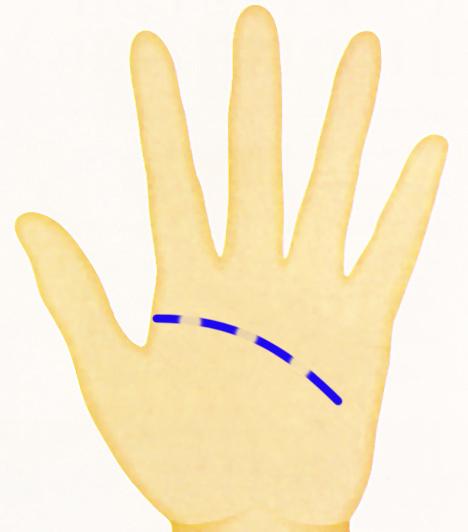 Kéz - toresek